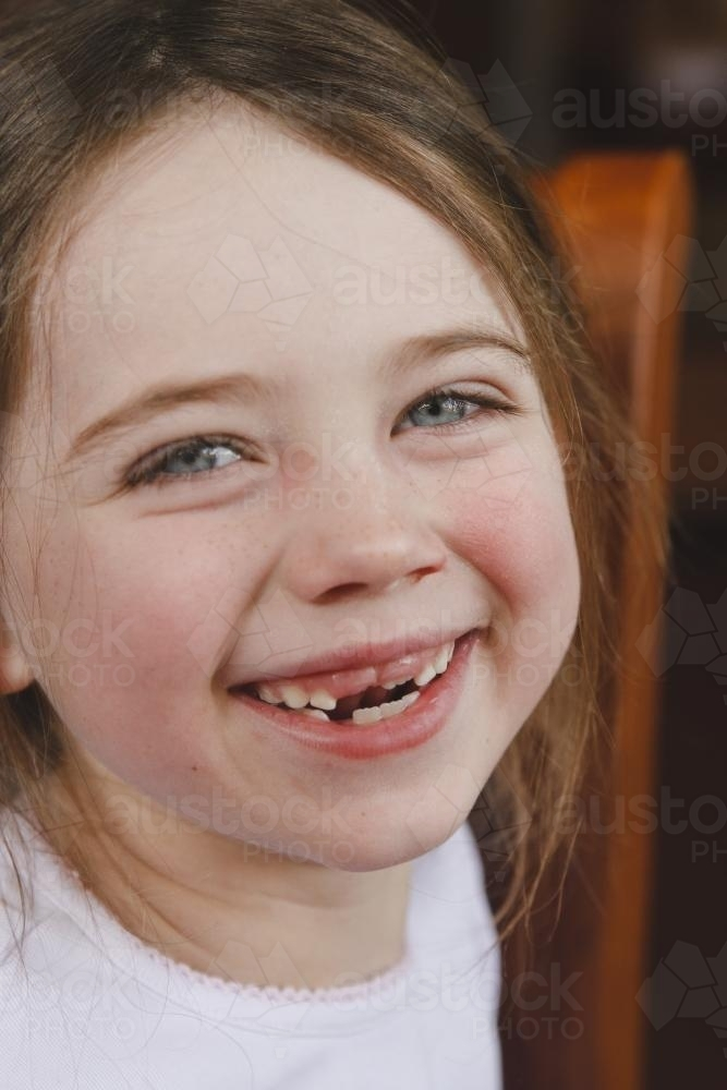 Image of Close up of a young girl with two front teeth