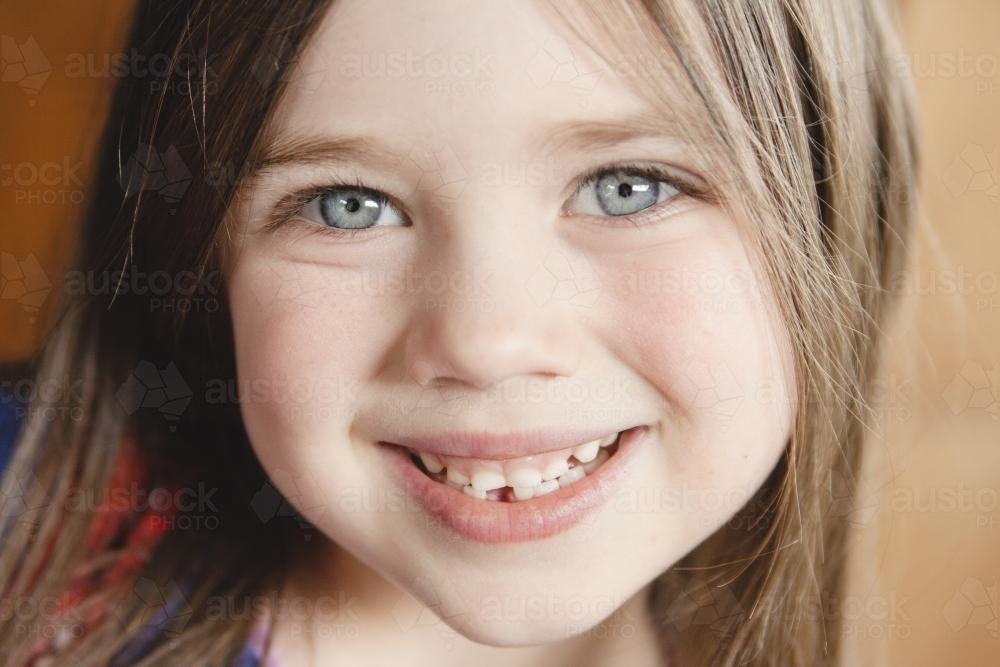 Little girl first lost tooth - Australian Stock Image
