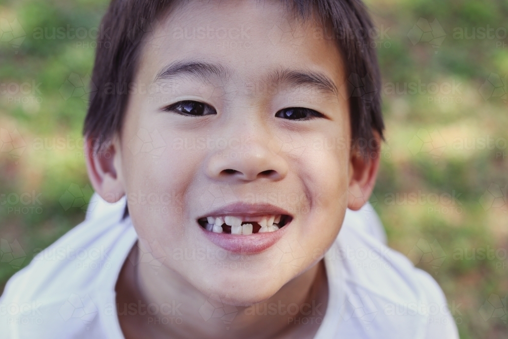 Young boy lost front teeth - Australian Stock Image