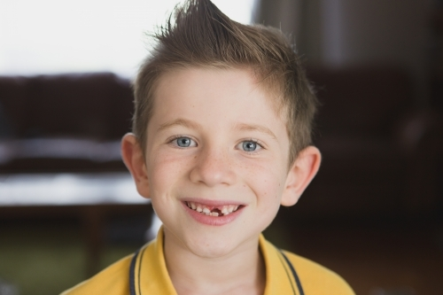 Boy smiling at camera with missing tooth