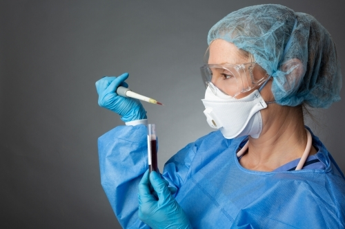 Laboratory pathologist healthcare worker holding a pipette blood sample for analysis